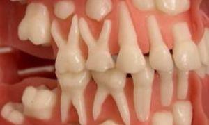 В каком возрасте у детей выпадают зубы