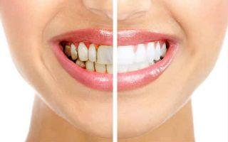 Почистить зубной камень в домашних условиях