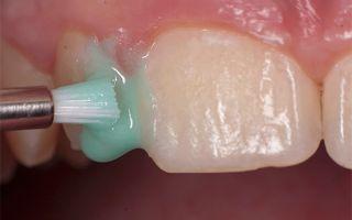 Гипоплазия эмали молочных зубов лечение