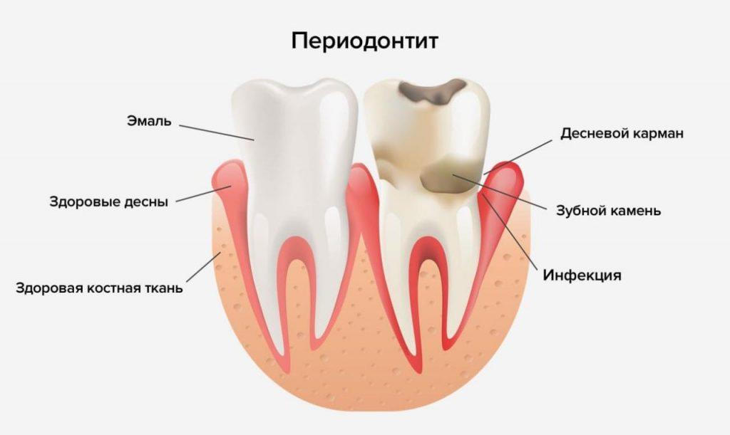 Какие болезни зубов встречаются чаще всего?