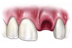 Через сколько проходит флюс после удаления зуба