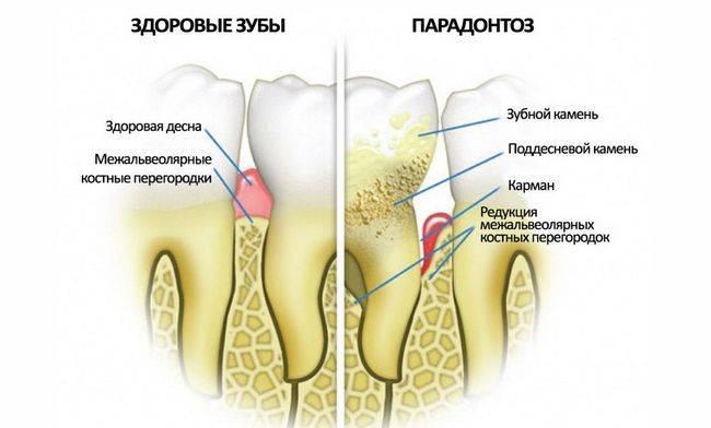 Как выглядит пародонтоз. На фото показаны здоровые зубы и пораженные пародонтозом