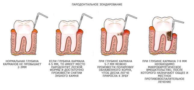 Лечение пародонтоза в зависимости от глубины пародонтальных карманов