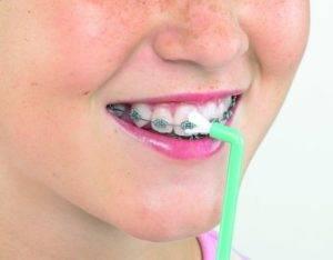 Как вставить дугу в последний брекет — Зубы