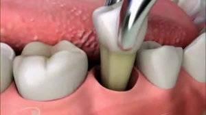 вырвали зуб