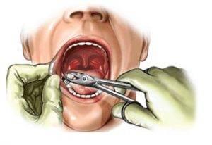 удаление зуба мубрости