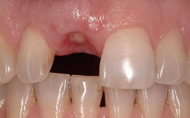 вырвали зуб что делать