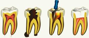 Зуб воняет гнилью но не болит