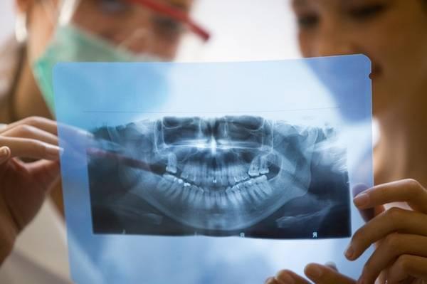 Удаление зуба при беременности в первом триместре