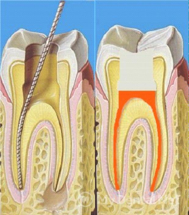 сколько дней болит зуб после лечения кариеса