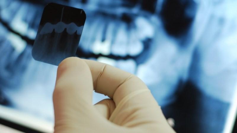 сколько дней болит зуб после лечения глубокого кариеса