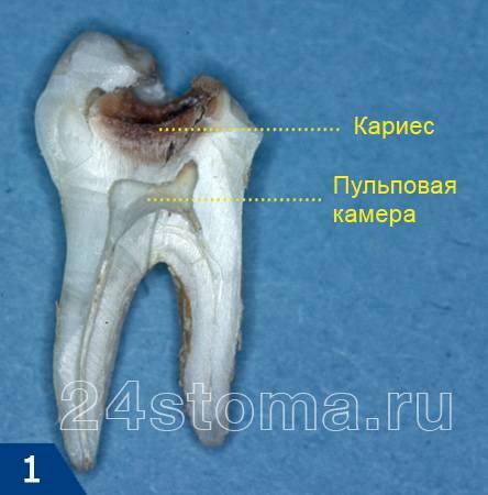 Вид зуба, пораженного кариесом на распиле
