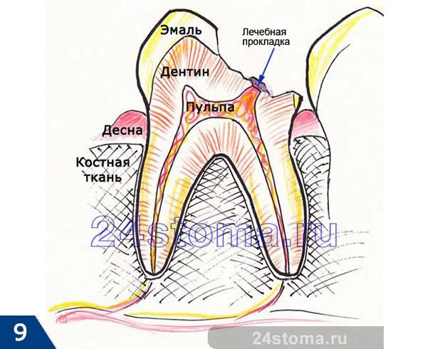 Биологический метод лечения пульпита (на вскрытый рог пульпы накладывается лечебный материал)