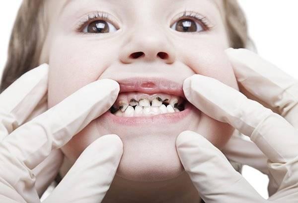 Коричневые зубы у ребенка — Зубы