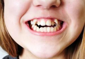 Выравнивание длины передних зубов