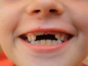 До скольки лет должны выпасть молочные зубы