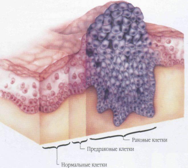 Лейкоплакия относится к предраковым состояниям