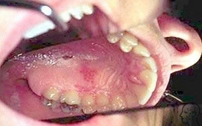 Как лечить герпес во рту? Причины и симптомы заболевания у взрослых