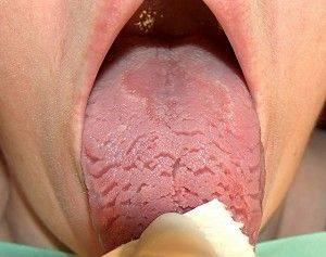 складчатый язык