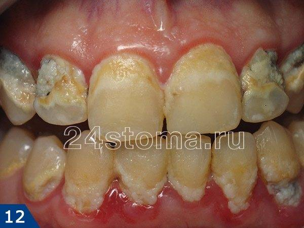 Крайне неудовлетворительная гигиена полости рта у ребенка
