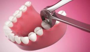После удаления зуба - если болит зуб и десна после удаления, правила поведения для профилактики осложнений, что делать после удаления зуба мудрости, через сколько дней заживает лунка?