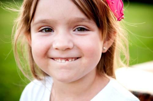 Что делать, если шатается коренной зуб у ребенка