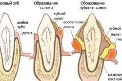 Схема шатания зубов