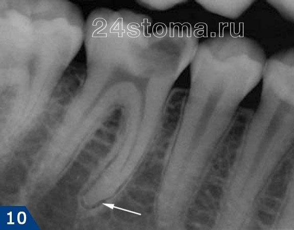 Хронический фиброзный периодонтит (стрелочкой указано расширение периодонтальной щели зуба)