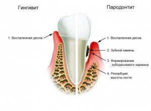 гингивит и пародонтоз