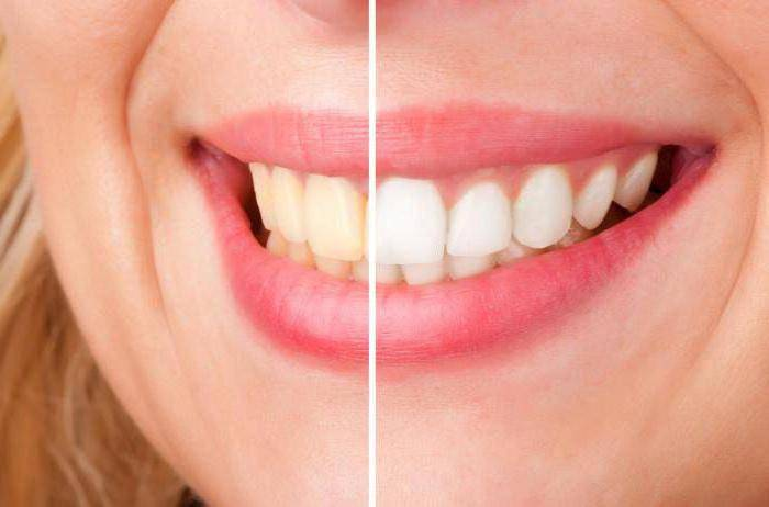 Как снять чувствительность зубов после отбеливания