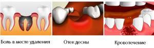 После удаления зуба поставили лекарство