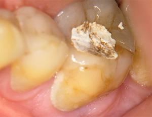 Зачем нужна временная пломба в зубе