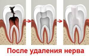 Почему болит зуб без нерва с пломбой при надавливании