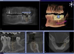 Как называется снимок зубов