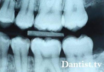 Внутриротовой снимок зубов