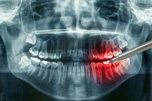 Что дает панорамный снимок зубов