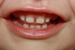 Потемнели зубы после антибиотиков у ребенка