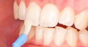 У ребенка гниют молочные зубы что делать — Зубы