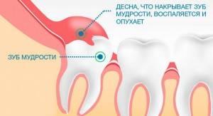 Большие ли корни у зубов мудрости