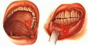 Язвочки могут появиться в любом месте полости рта