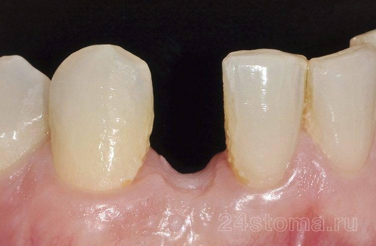 Исходная ситуация: отсутствует боковой резец нижней челюсти