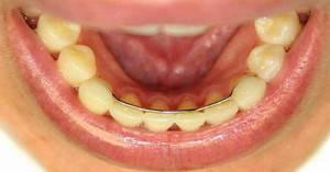 Можно ли снять брекеты раньше срока — Зубы
