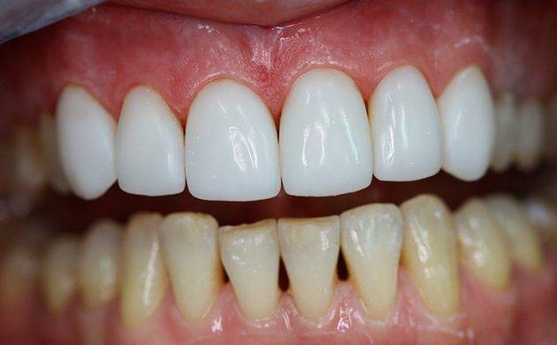 Терапевтические виниры показаны при незначительных разрушениях зубов