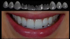 Зубы и виниры о процессе установки показаниях и противопоказаниях к процедуре