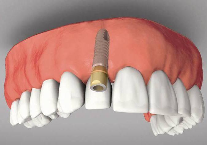 импланты зубов отзывы вред противопоказания