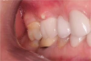 Гной из под десны при нажатии – Здоровье полости рта