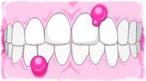 Гной из десны при надавливании — Зубы