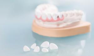 Зубная коронка что это такое — Зубы