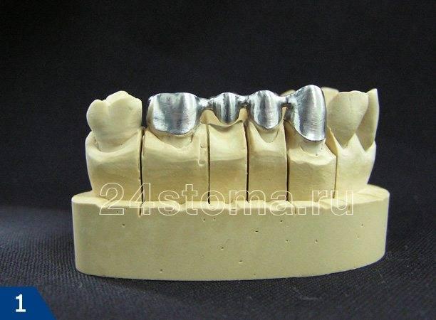 Литой металлический каркас металлокерамического мостовидного протеза на гипсовой модели зубов пациента