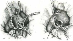 Резекция желудка операция